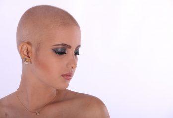 Solutions contre la perte de cheveux