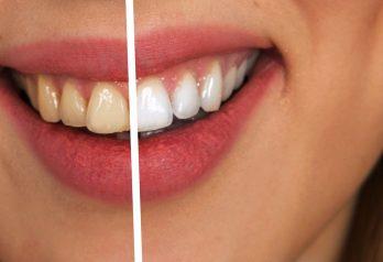 D'où viennent les tâches sur les dents
